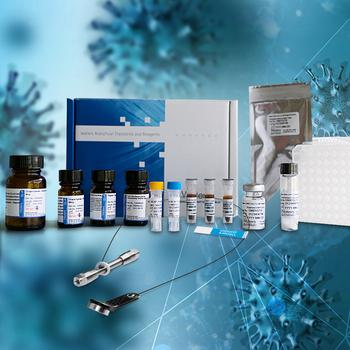 Waters Introduces the SARS-CoV-2 LC-MS Kit (RUO) to Advance Clinical Research of Infectious Diseases: https://mms.businesswire.com/media/20210525005257/en/880654/5/thumbnail_WG_Apollo-SARS-CoV-2-Kit-Launch_300x300_highres.jpg
